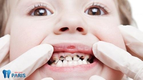 Điều trị sâu răng ở trẻ em, những điều mẹ cần biết 1