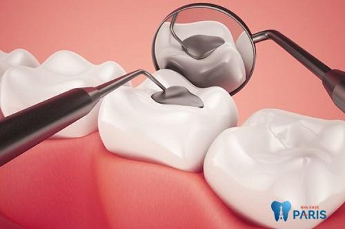 Điều trị sâu răng ở trẻ em, những điều mẹ cần biết 2