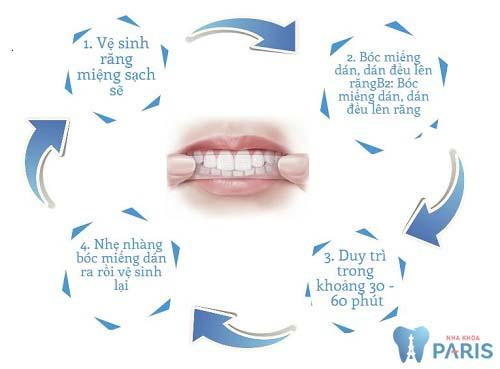 Cách sử dụng miếng dán trắng răng hiệu quả bạn đã biết chưa?