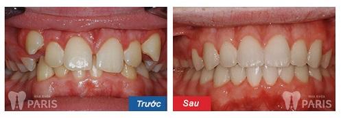 Biềng răng đẹp cỡ nào 4
