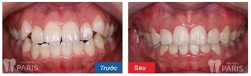 Niềng răng hô hàm trên giá bao nhiêu? – Bảng giá chi tiết 2017 3