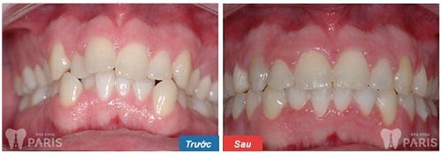 Niềng răng mất bao lâu thì hàm răng đều đẹp nhất? 3