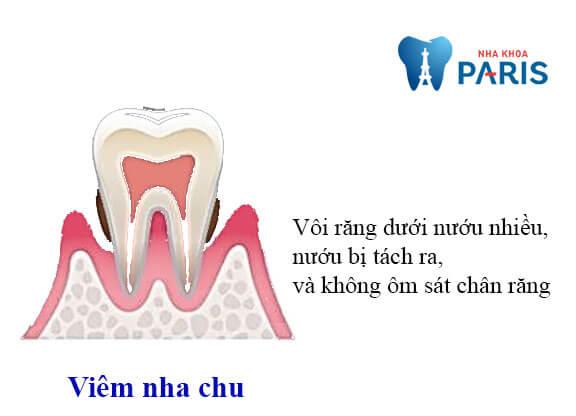 Nướu bị viêm nhiễm là nguyên nhân chủ yếu khiến răng lung lay đau nhức
