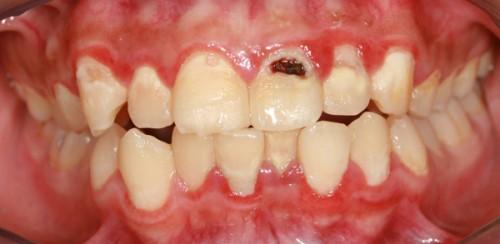 Viêm tủy răng cửa nên điều trị như thế nào?