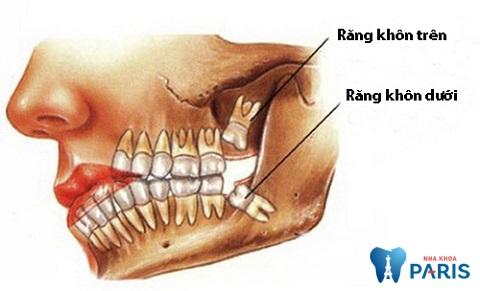 Đối với người bình thường, răng khôn mọc ở cả hàm trên và hàm dưới