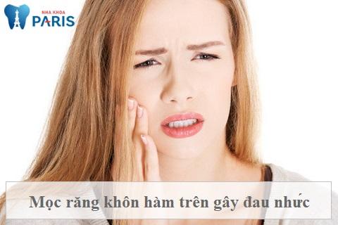 Mọc răng khôn có thể gây đau nhức, ảnh hưởng đến cuộc sống người bệnh