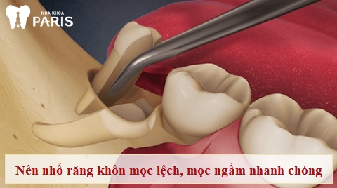 Nhổ răng khôn giúp loại bỏ nguy cơ xấu do răng khôn gây ra