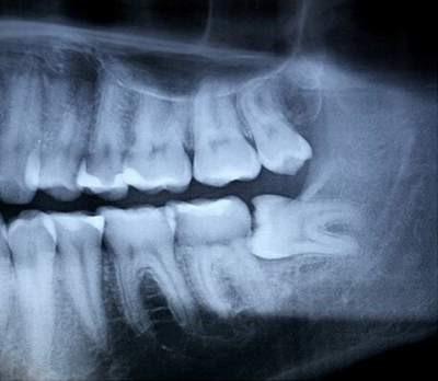 Răng khôn khi nào mọc & những DẤU HIỆU nhận biết chính xác 1