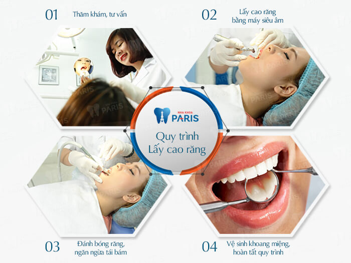 Lấy cao răng có an toàn không? - Bác sĩ nha khoa tư vấn 3