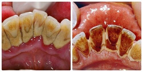 Cao răng có màu gì, cách nhận biết để phát hiện sớm? 1