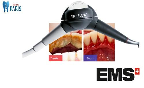 Giải pháp chăm sóc nha chu EMS 3 tác động điều trị viêm nha chu 4