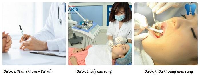 Giải pháp chăm sóc nha chu EMS 3 tác động điều trị viêm nha chu 5