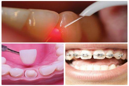 Chỉnh răng thưa mất bao nhiêu tiền là chính xác nhất? 1