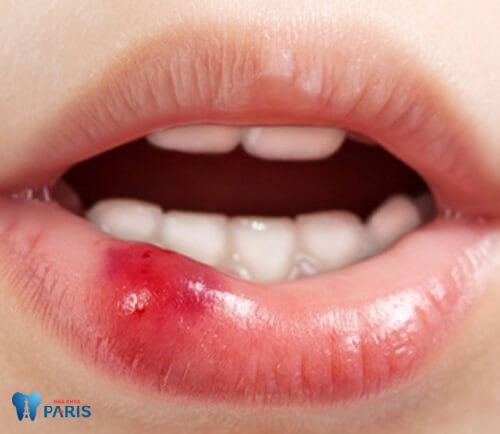 Xác định nguyên nhân gây bệnh lở miệng 2