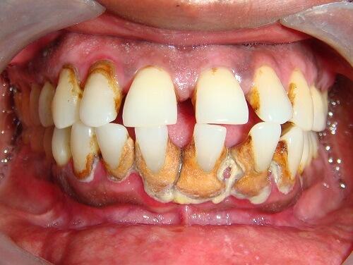 Tiêu xương chân răng - nguyên nhân, tác hại và cách khắc phục 2