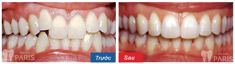 Niềng răng hô hàm trên giá bao nhiêu? – Bảng giá chi tiết 2017 1