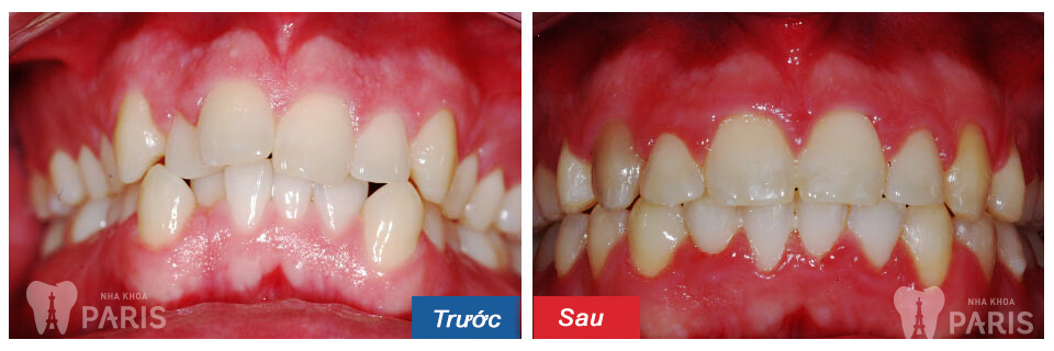 Niềng răng không mắc cài – đỉnh cao của chỉnh nha thẩm mỹ 7