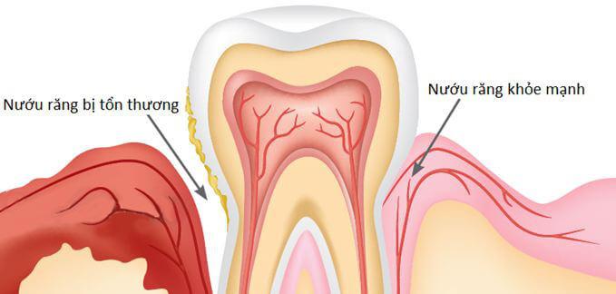 Cách chữa bệnh viêm nướu răng hiệu quả từ Dân gian tới >> Hiện đại 2