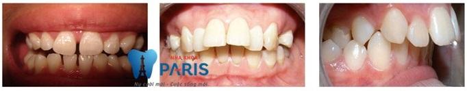 Niềng răng không mắc cài – đỉnh cao của chỉnh nha thẩm mỹ 2