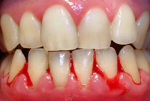 Lấy cao răng có an toàn không? - Bác sĩ nha khoa tư vấn 2
