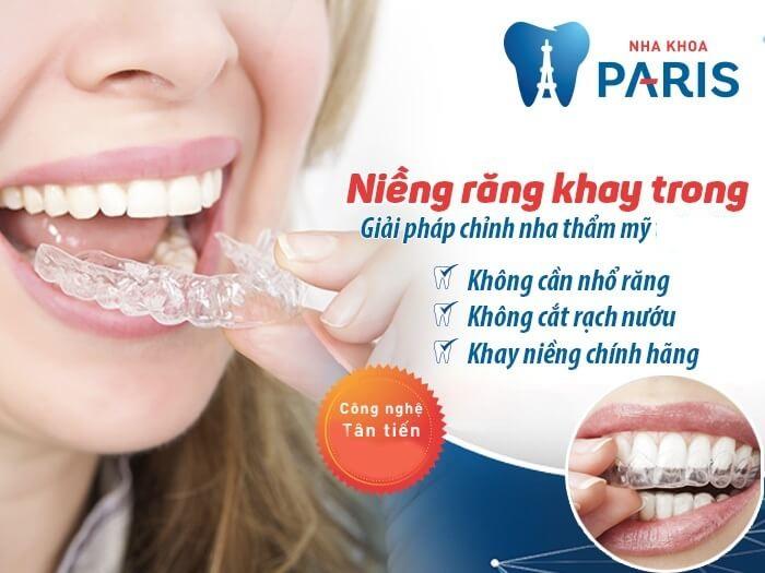 Niềng răng không mắc cài – đỉnh cao của chỉnh nha thẩm mỹ 1