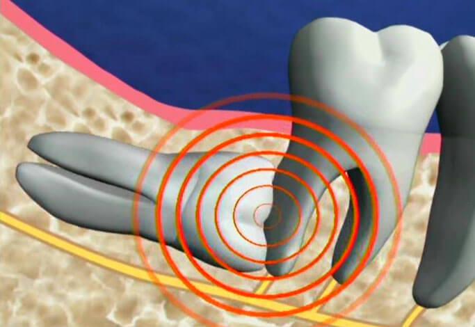Mọc răng khôn có ý nghĩa gì? Những cách giảm đau CẤP TỐC 2