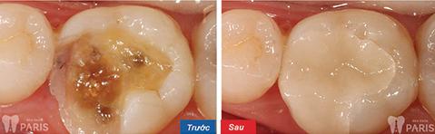 Trám răng mất thời gian bao lâu? – Bác sĩ giải đáp 5