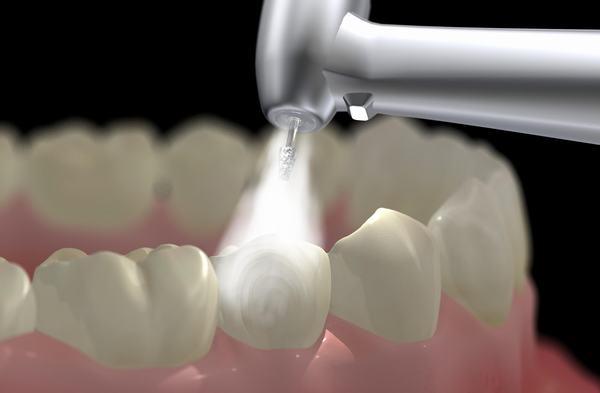Lấy cao răng như thế nào