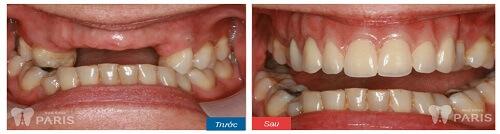 Hàm giả tháo lắp phục hình răng mất an toàn và tiết kiệm 6