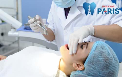 Nhổ răng để niềng có đau không 1