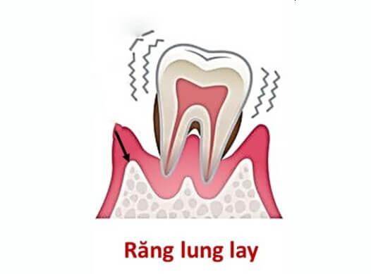 Dấu hiệu, nguyên nhân, cách điều trị bệnh viêm tủy răng 2
