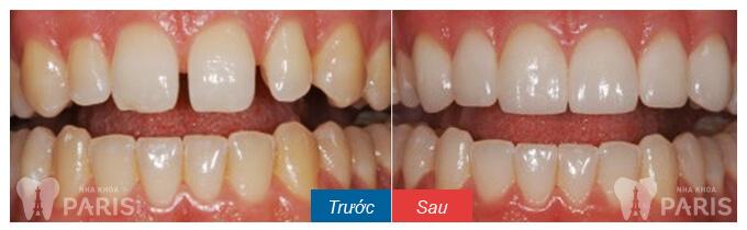 Trám răng có bền không