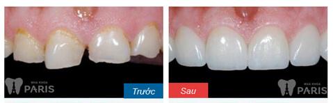 Trám răng mất thời gian bao lâu? – Bác sĩ giải đáp 6