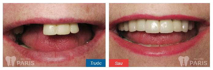 Hàm giả tháo lắp phục hình răng mất an toàn và tiết kiệm 5