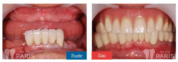 Hàm giả tháo lắp phục hình răng mất an toàn và tiết kiệm 4
