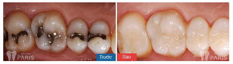 trám răng có bền không 2