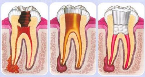 Viêm tủy răng có mủ phải làm sao? 1
