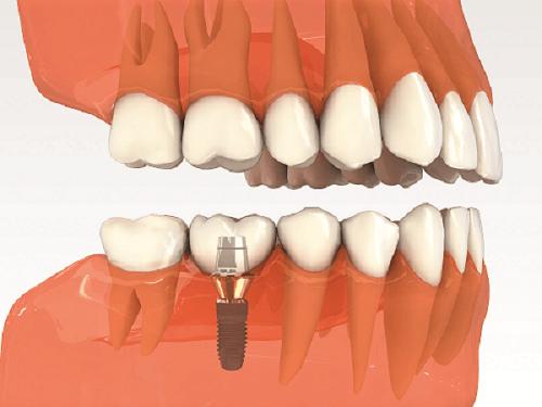 Sâu răng hàm rất nặng có nên nhổ không? 3
