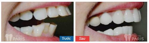 Phương pháp chỉnh hình răng vẩu hiệu quả nhất năm 2017!!