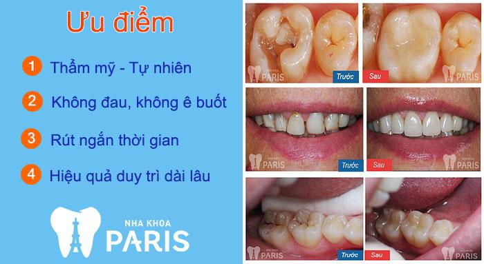 Nha khoa thẩm mỹ Hồ Chí Minh 6