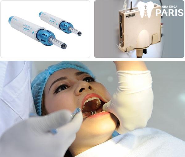 Nhổ răng sâu có đau không? 3