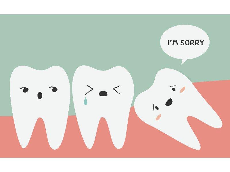 Răng khôn là gì? Những lưu ý khi mọc răng khôn KHÔNG THỂ BỎ QUA 1