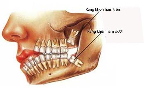 Răng khôn là gì? Những lưu ý khi mọc răng khôn KHÔNG THỂ BỎ QUA 2