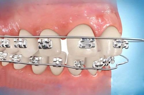 Răng cửa bị thưa phải làm sao để điều trị TRIỆT ĐỂ nhất 3