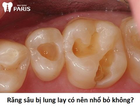 Răng sâu bị lung lay phải làm sao là thắc mắc chung của khách hàng
