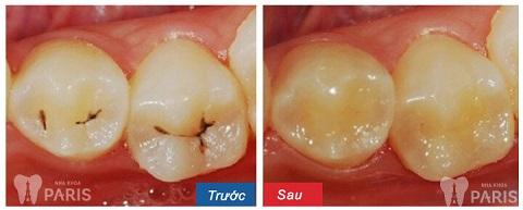 Hàn trám răng là 1 cách khắc phục răng sâu bị lung lay