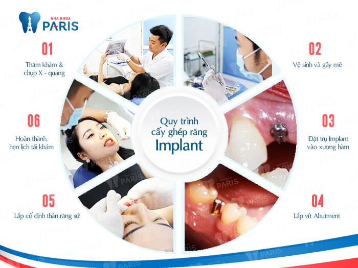 Cấy răng Implant 4S - Công nghệ trồng răng bền chắc gấp 10 lần 4