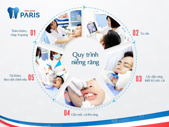Niềng răng mất bao lâu thì hàm răng đều đẹp nhất? 4
