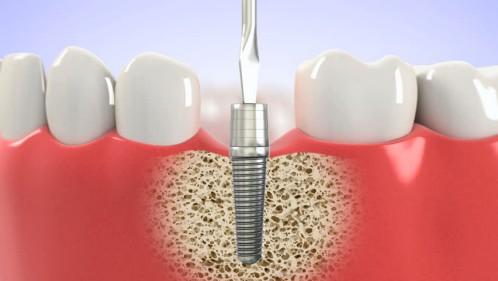 Trồng răng implant mất bao lâu? – Chuyên gia nha khoa tư vấn 1