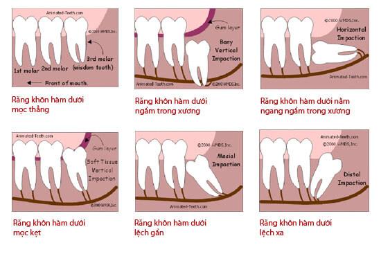 Răng khôn thường mọc ở đâu? Có nên nhổ răng khôn không? 2